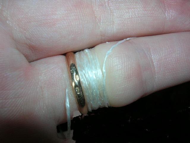 снимаем кольцо с опухшего пальца