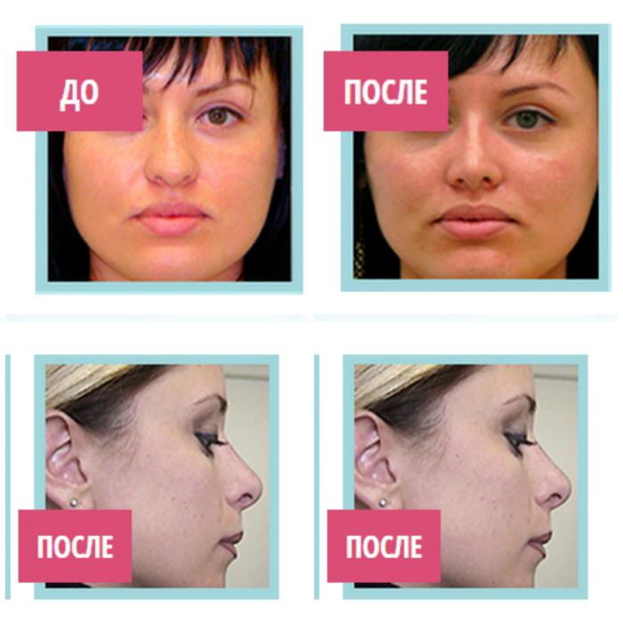 Результаты применения лангетки для коррекции формы носа Рино Коррект