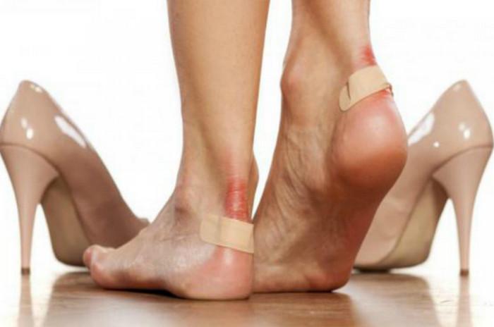 мозоли на ногах