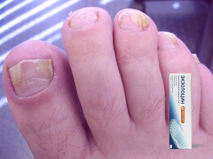Что такое средство Экзолоцин от грибка ног и ногтей