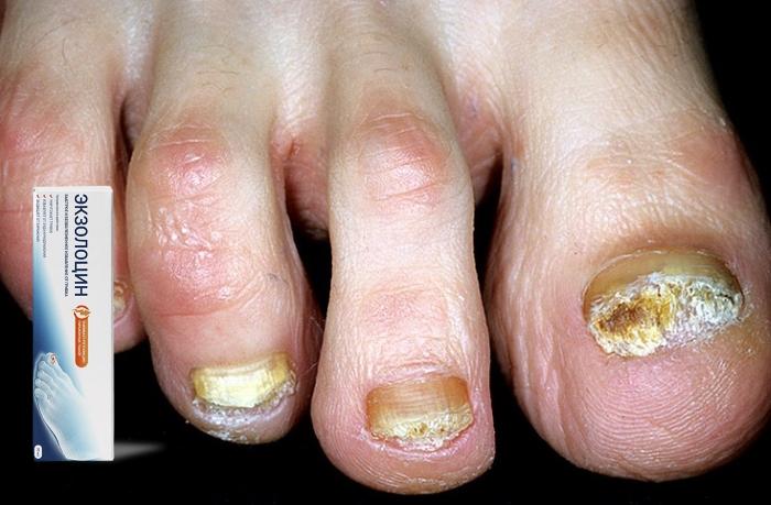 Особенности и преимущества средства Экзолоцин от грибка ног и ногтей