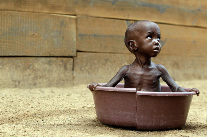 африканский голодный ребенок