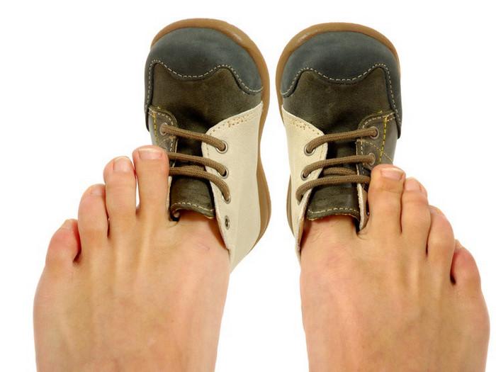 тесная обувь на ногах