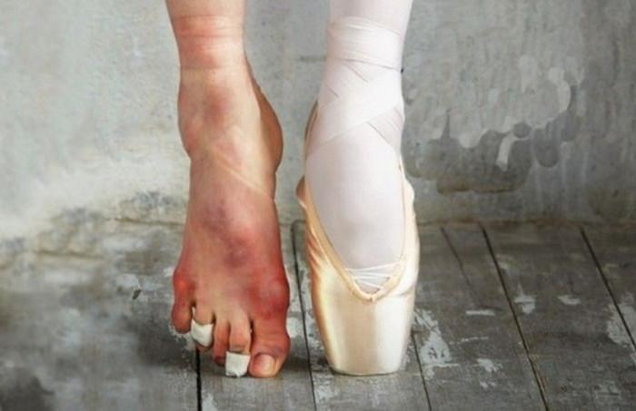больные ноги балерины